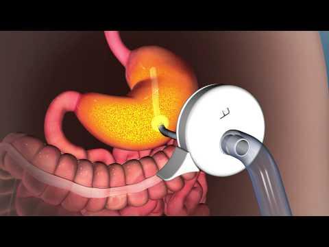 Valvulas del Estomago